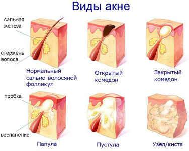 vidy-akne